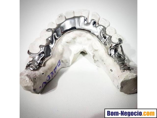 Compramos Prótese dentária com metal